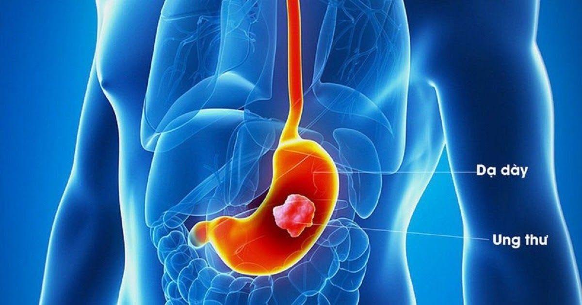 Hình ảnh khối u trong dạ dày