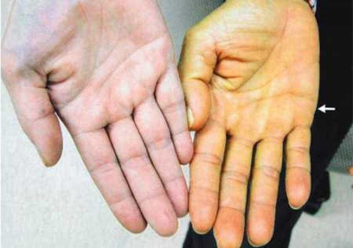 Vàng da có thể là dấu hiệu của ung thư gan