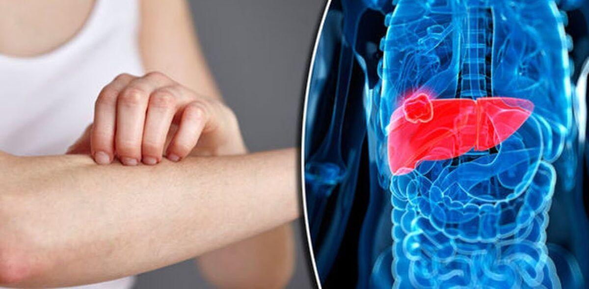 Ngứa có thể là dấu hiệu của ung thư gan