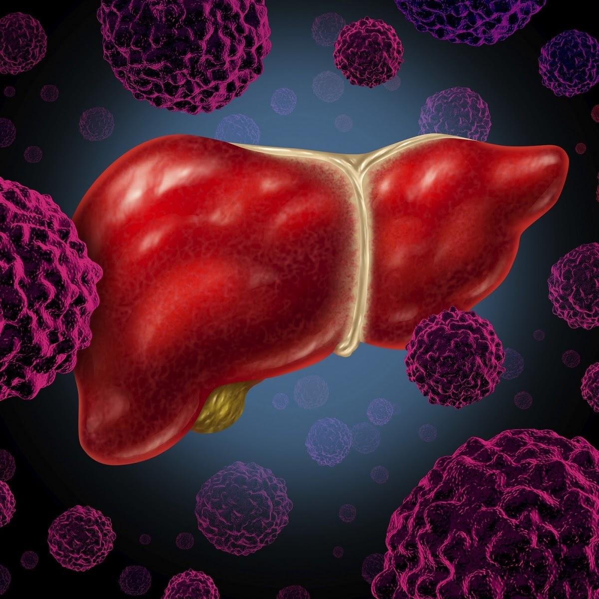 Hình ảnh ung thư gan
