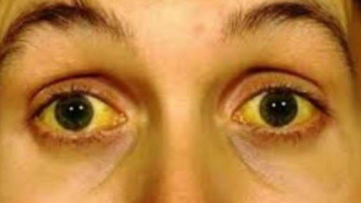 Vàng da, vàng mắt là một dấu hiệu của ung thư gan