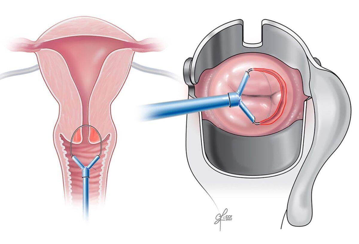 Xét nghiệm ung thư cổ tử cung bằng sinh thiết chóp cổ tử cung