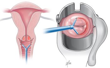 Xét nghiệm ung thư cổ tử cung và những điều cần lưu ý