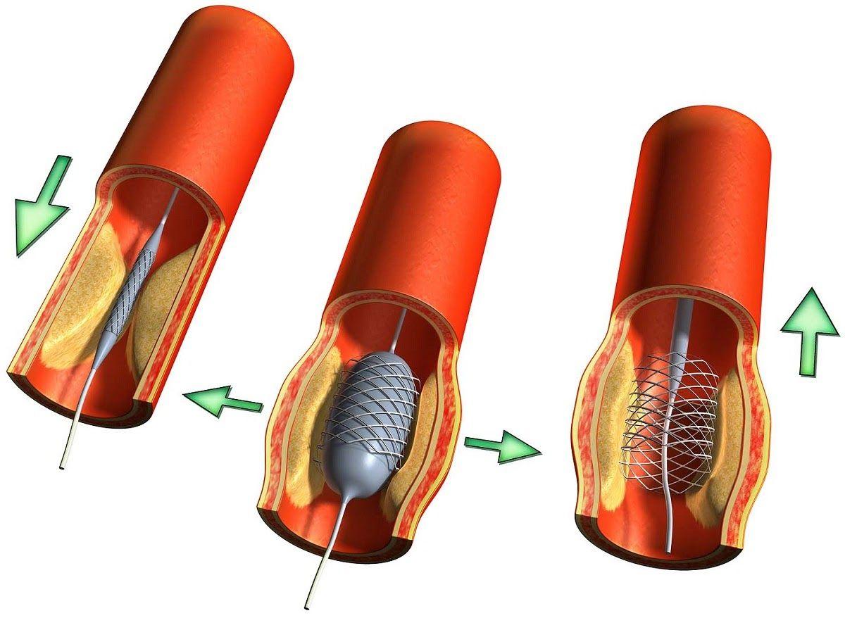 Đặt stent là một trong các phương pháp phẫu thuật ung thư đường mật