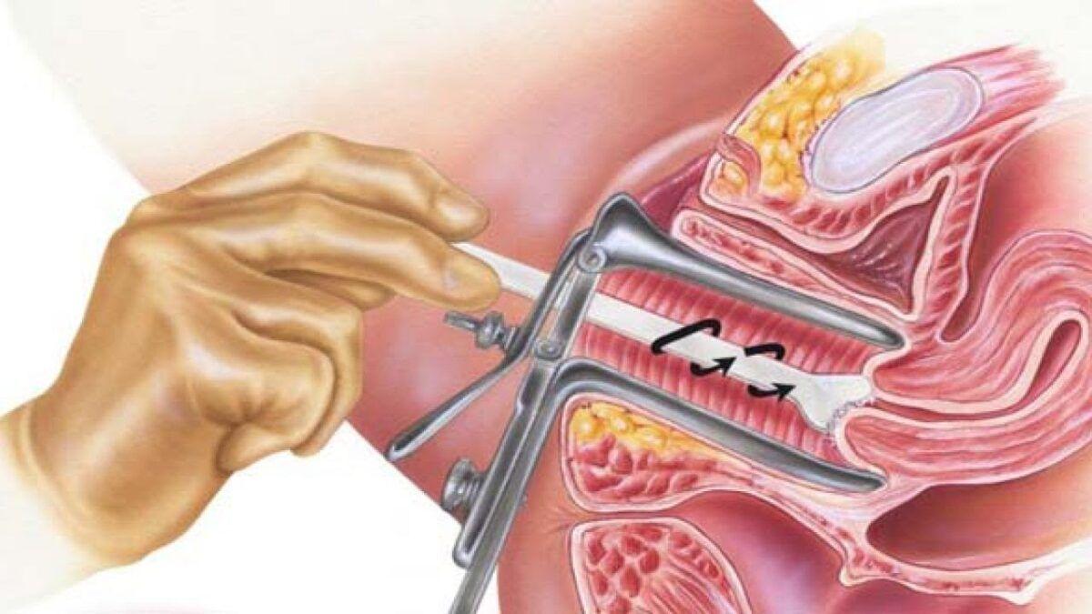 Xét nghiệm ung thư cổ tử cung PAP khi sàng lọc ung thư cổ tử cung