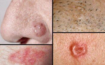 Ung thư biểu mô tế bào đáy – Nguyên nhân, triệu chứng và cách điều trị