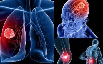 Phương pháp hỗ trợ điều trị bệnh ung thư phổi di căn tốt nhất