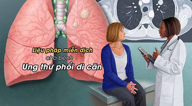 benh-ung-thu-phoi-di-can_22