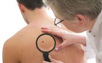 Những cách phòng tránh ung thư da hiệu quả vào mùa hè