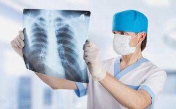 Ung thư phổi giai đoạn 1 – Dấu hiệu nhận biết sớm và cách điều trị
