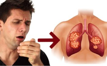 Ung thư phổi giai đoạn đầu – Biểu hiện và cách điều trị hiệu quả