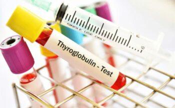 Tg là gì? Những điều cần biết khi làm xét nghiệm Tg trong máu