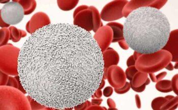 Bệnh máu trắng: Nguyên nhân, dấu hiệu và cách điều trị