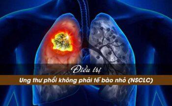 Những thông tin cần biết về bệnh ung thư phổi không tế bào nhỏ