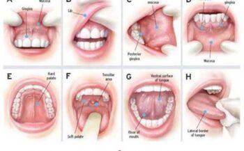 Giải đáp: ung thư lưỡi có chữa khỏi được không?
