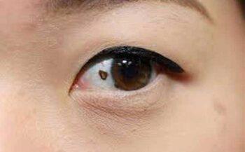 Ung thư mắt – Nguyên nhân dấu hiệu và cách điều trị