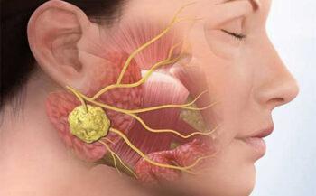 Bệnh ung thư tuyến nước bọt: Nguyên nhân, dấu hiệu và cách điều trị