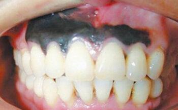 Ung thư nướu răng: Nguyên nhân và cách điều trị hiệu quả