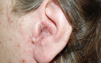 Ung thư tai: Nguyên nhân và cách điều trị bệnh hiệu quả