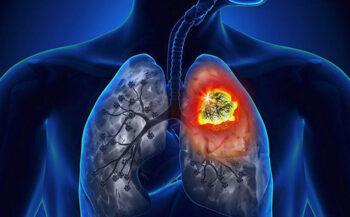 Ung thư phổi giai đoạn cuối và những điều cần lưu ý