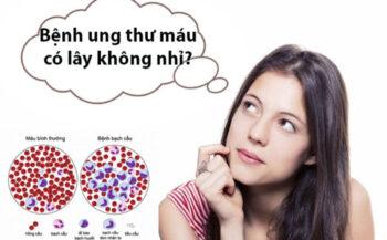 Ung thư máu có lây không? Biện pháp phòng ngừa ung thư máu