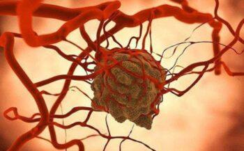 Ung thư di căn là gì và những thông tin cần biết