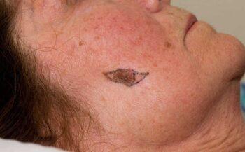 Ung thư hắc tố: Nguyên nhân, dấu hiệu và cách điều trị