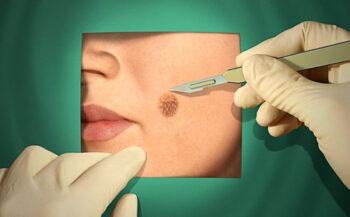 Giải đáp câu hỏi ung thư da có chữa được không?